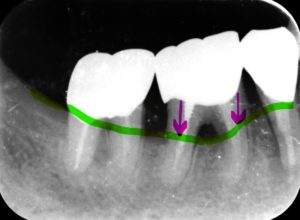 歯周病患者のレントゲン